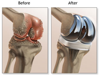 Treatments For Knee Osteoarthritis Jaspal Ricky Singh M D