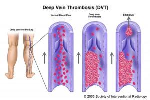 deep-vien-thrombosis